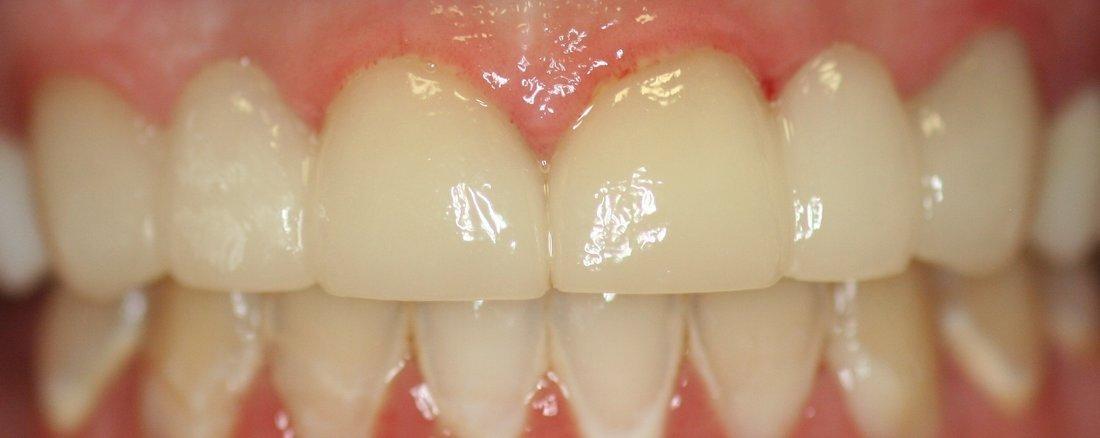 Opal Ridge Dentals Smile Gallery