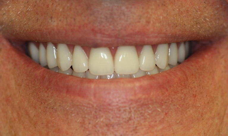 Complete-Denture-Upper-and-Lower-After-Image