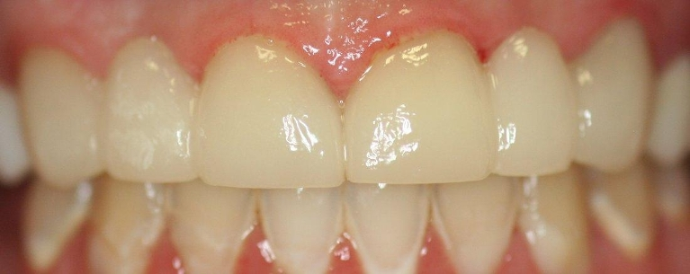 Smile-enhancement-with-Anterior-Bridge-After-Image