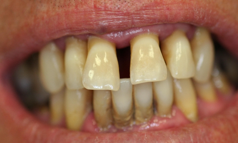 Complete-Denture-Upper-and-Lower-Before-Image
